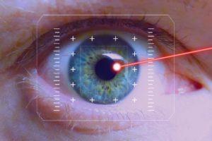 Augen lasern lassen